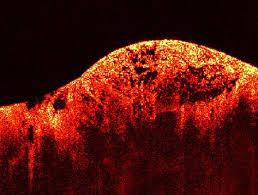 simple eye scan of retina