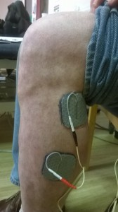 Positioning of electrodes for foot drop