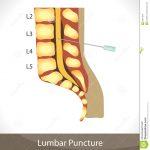 Will the lumbar puncture hurt?
