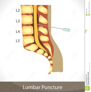 Will the lumbar puncture hurt?
